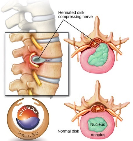 Bulging Disc - Anatomy and Treatment | Wellbeing Physiotherapy & Rehab
