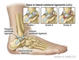 Lateral Ankle Ligament Sprains