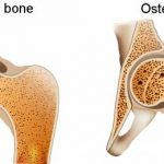 Osteoporosis and Physical Treatment
