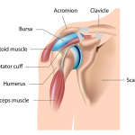 Shoulder Bursitis – A Common Cause of Pain in the Shoulder